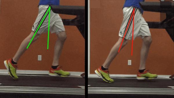 estensione dell'anca mentre si corre